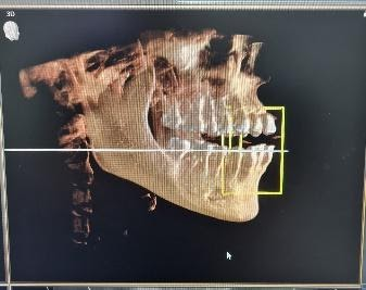 cone-beam-ct-scan